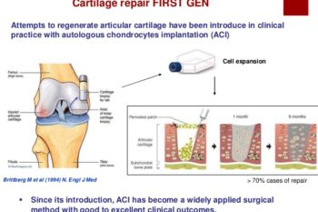 Cartilage Cell Therapy